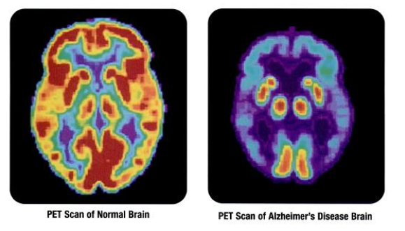 PET_scan-normal_brain-alzheimers_disease_brain